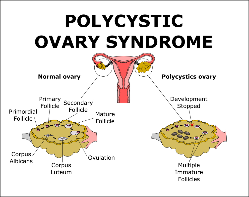 Diet Plans for Women with PCOS