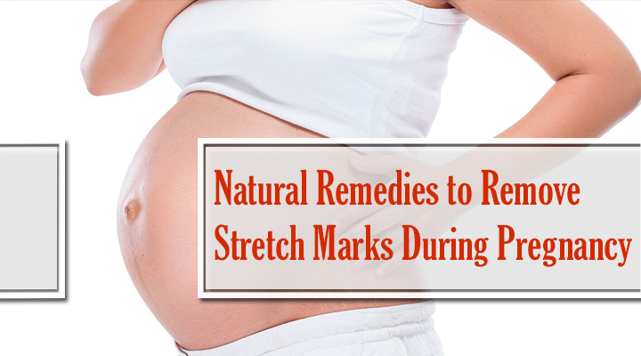 pregnancy stretch mark remedies