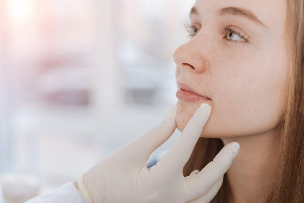 Visit a Dermatologist
