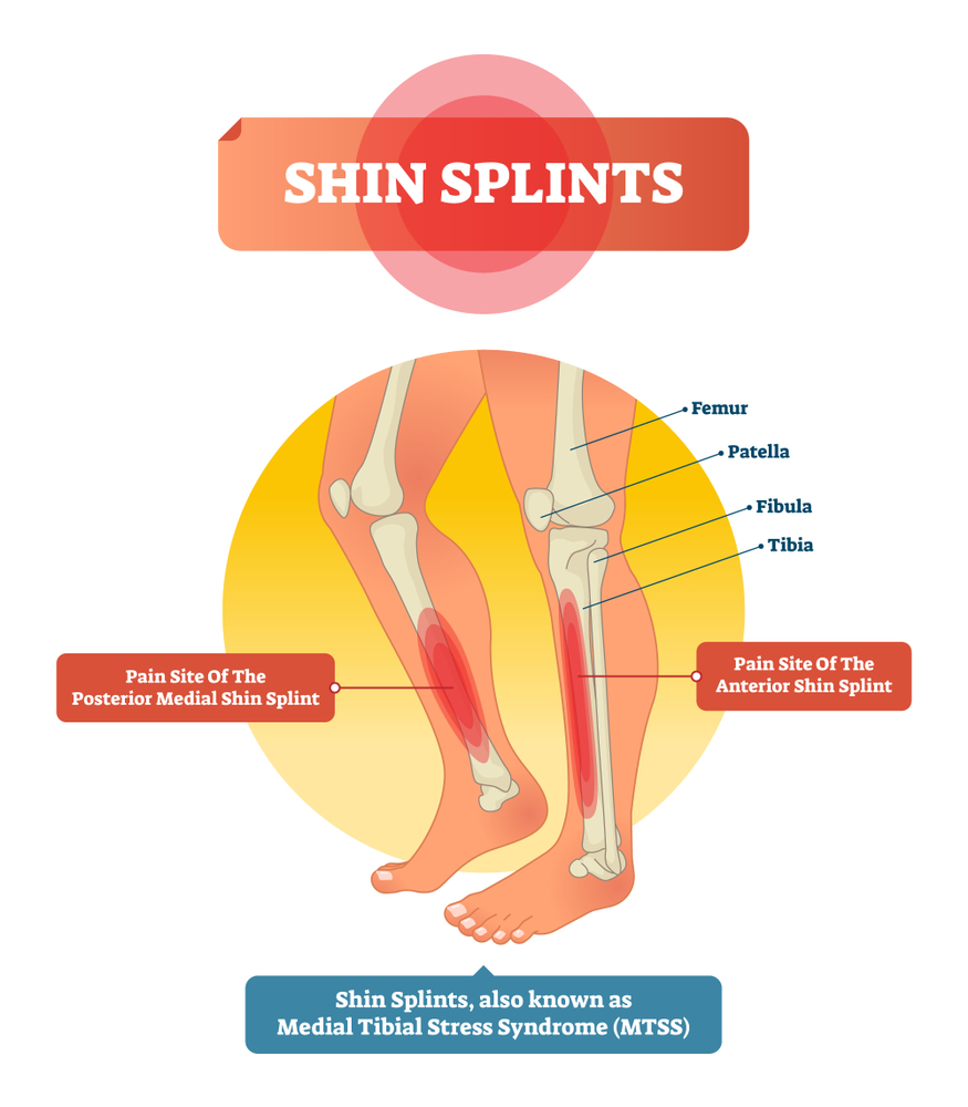 Easy Ways To Prevent Shin Splints While Walking