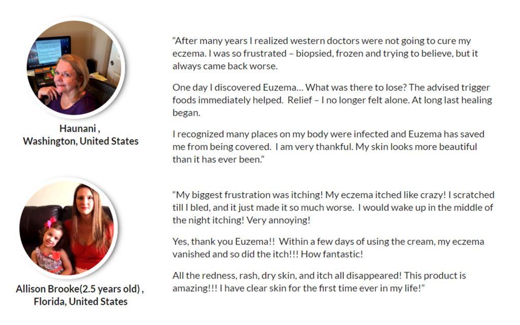 Euzema customer reviews